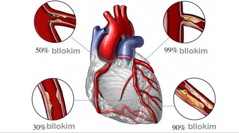 semundja e arterieve koronare
