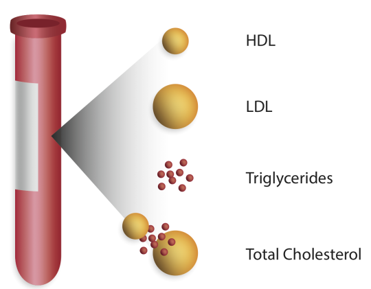 analizat e koleterolit